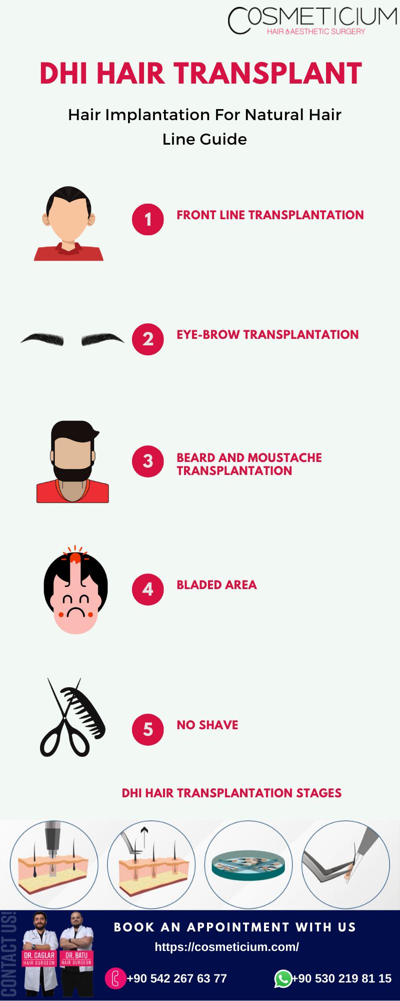 DHI Hair Transplant - Cosmeticium